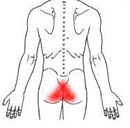 tailbone pain2