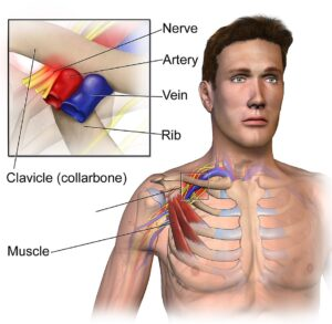 Thoracic Outlet Syndrome- by www.physioscare.com