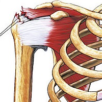 INJURIES OF THE ACROMIOCLAVICULAR JOINT
