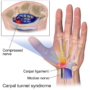 Carpal Tunnel Syndrome: Risk Factors, Symptoms & Treatment-physioscare