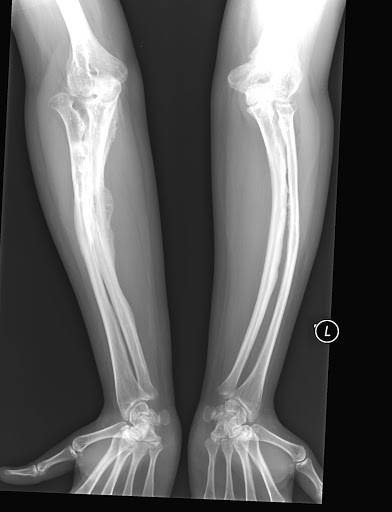 Osteogenesis Imperfecta Type V 2B 25281 2529