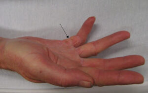 Dupuytren's contracture- www.physioscare.com