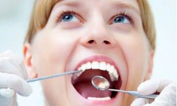 Oral-ID Cancer Screening