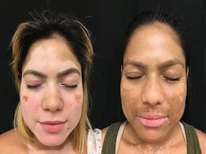 New Treatment Could Be Breakthrough For Vitiligo Skin Condition Rowan Diagnostic