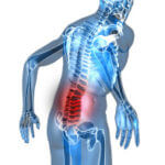 low back pain and sciatica new jersey