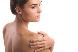 Graston Technique® Heals Scars