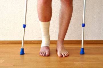 Physical Therapy After Ankle Surgery