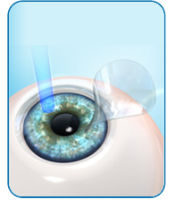 Laser Eye Surgery in Fredericksburg, VA