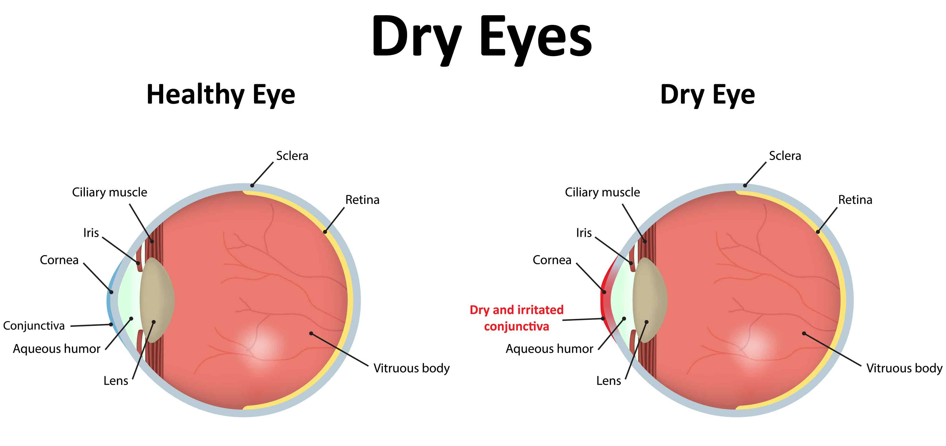 Watch out for Dry Eyes in Winter