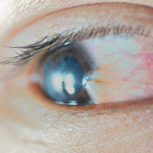 What is pterygium?
