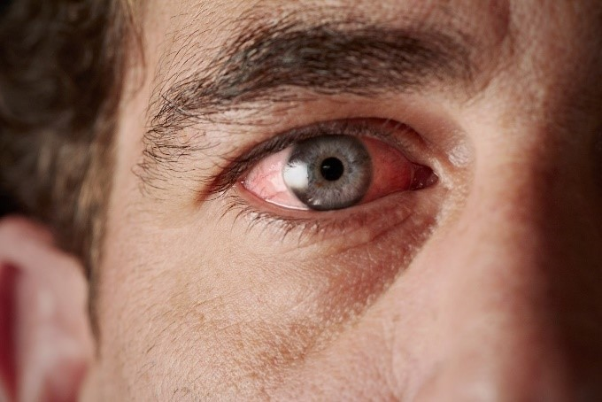 What to Know about Meibomian Gland Dysfunction