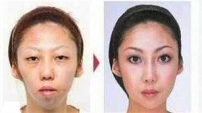 """Foto falsa que circula pela internet mostrando o que seria um """"antes e depois"""" da cirurgia"""
