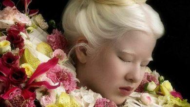 modelo com albinismo