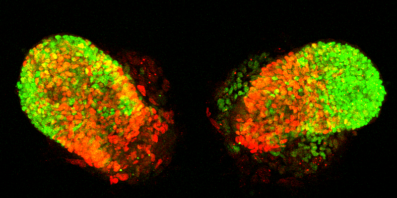 image of two infected lung buds