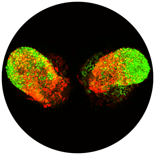 A visual of virus-infected lung tissue