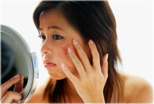 Woman checking her acne on the mirror
