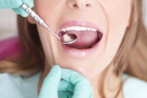 A dentist checking a woman's teeth