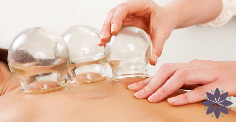 Cupping Therapy in Annapolis Maryland