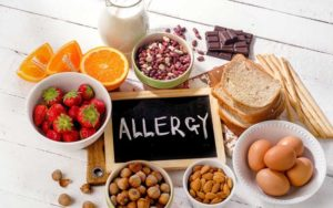 The Challenge of Food Allergies at Summer Camp