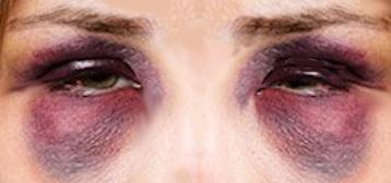 black eye photo modified, from Rvervuurt, CC BY-SA 3.0 <http://creativecommons.org/licenses/by-sa/3.0/>, via Wikimedia Commons
