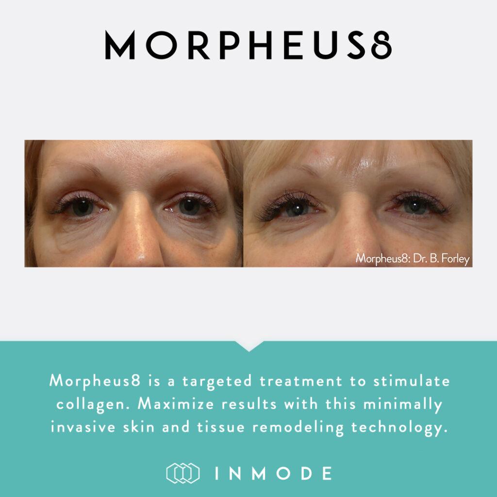 Morpheus8_BeforeAndAfter_SocialPost-1