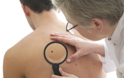 Popular Misconceptions About Skin Cancer Debunked