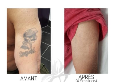 Complete 4 Sessions Man on Arm 1