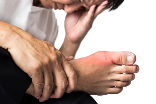 Gout Treatment Podiatry Katy Texas
