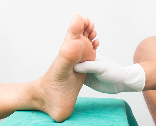 Diabetic Foot Treatment Katy Texas