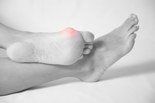 Bunion Treatment Katy Texas