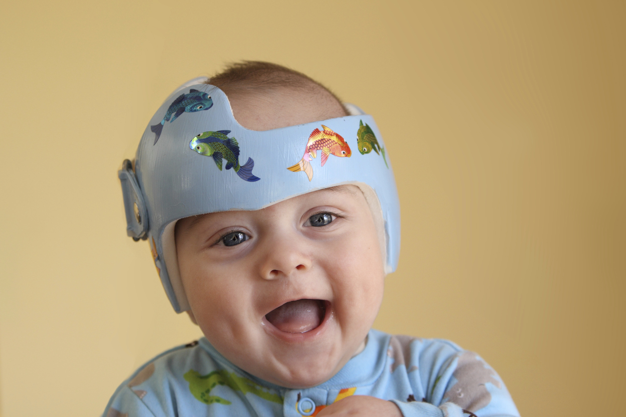 Infant wearing a helmet or band for treatment of plagiocephaly (Shallow depth of field. Focus on child's eyes.)SEE ALSO: