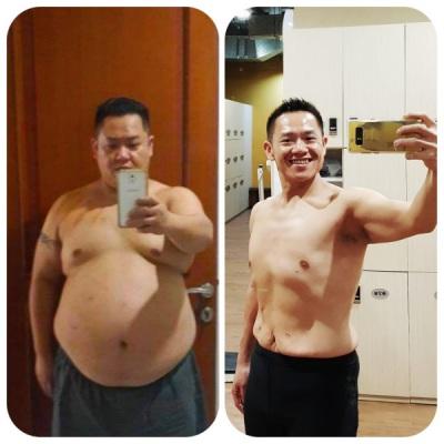 bedah-obesitas-bedah-bariatrik-4-1.jpeg?time=1596477612