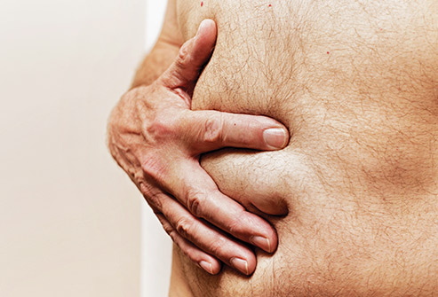 HERNIA-DIGESTIHEALTH-2.jpg?time=1582031733