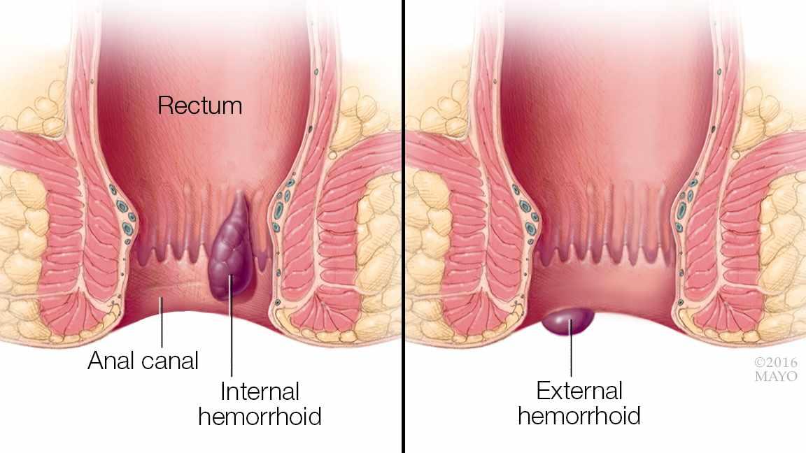 hemoroid internal dan external pengobatan wasir tanpa rasa sakit