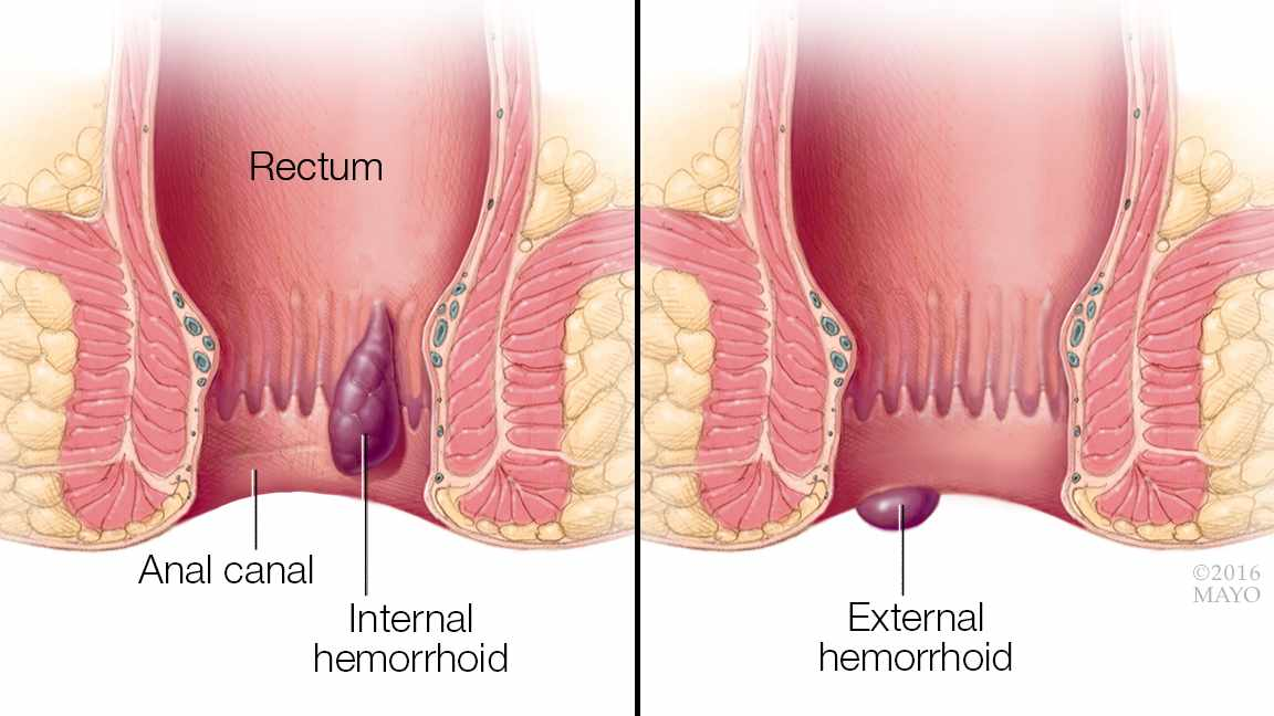 hemoroid-internal-dan-external-pengobatan-wasir-tanpa-rasa-sakit.jpg?time=1618445699