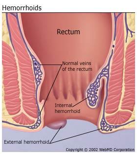 understandinghemorrhoidsbasics-hemorrhoids.jpg?time=1601250091
