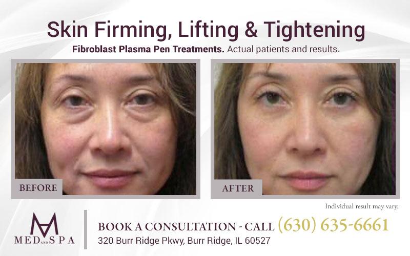 medandspa skin-rejuvenation plasma-pen 01
