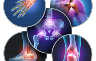 Relieving Arthritis Pain