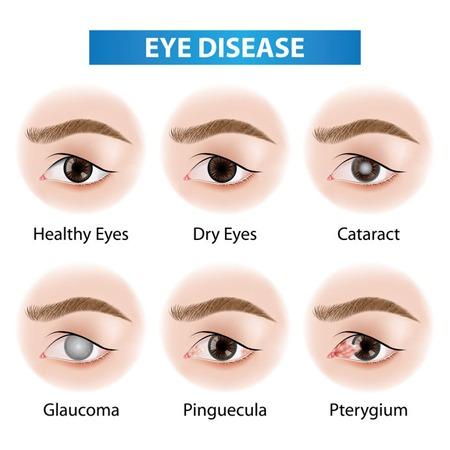 Eye Diseases Need Optometrist