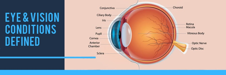 Eye and Vision Conditions Defined