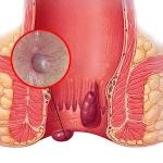 hemorrhoids-picture