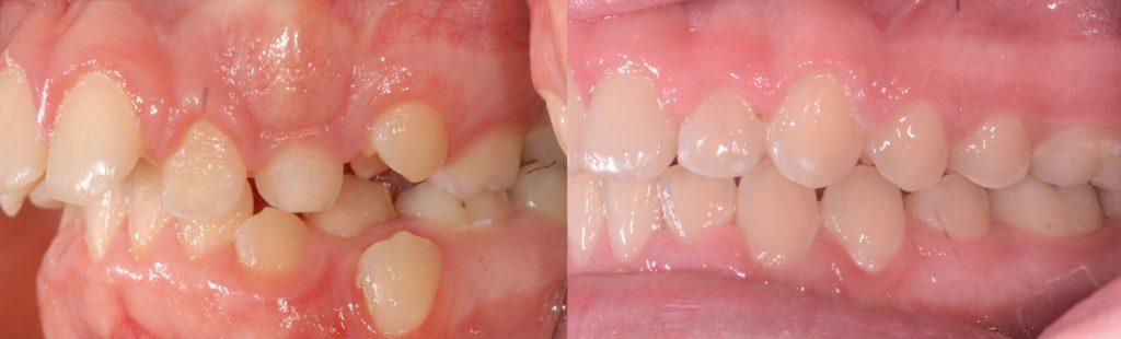protruding teeth