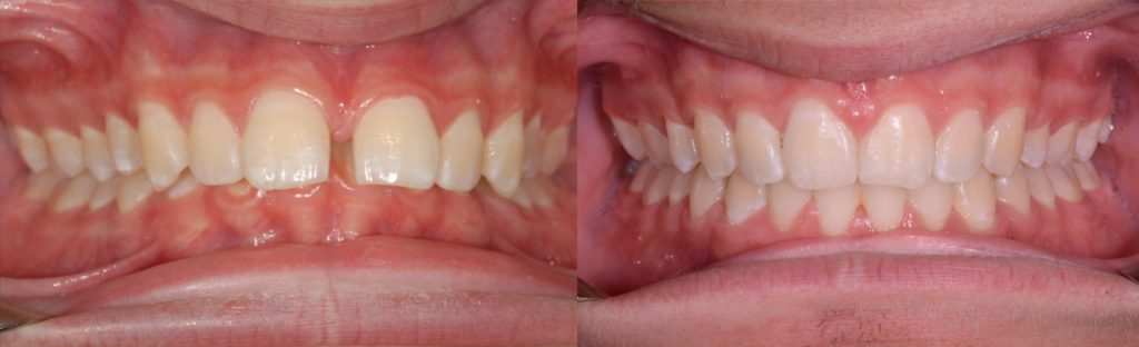 Transformed from crooked to straight teeth, orthodontics by Mark Cordato, Lithgow, Katoomba, Blackheath, Leura, Mudgee, Portland, Wallerawang, Kandos, Oberon, Marrangaroo, Mount Victoria and Hartley