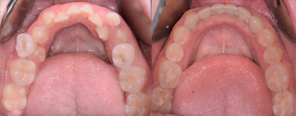 Very crowded lower, Many orthodontist would think of extracting. I fitted them all in.