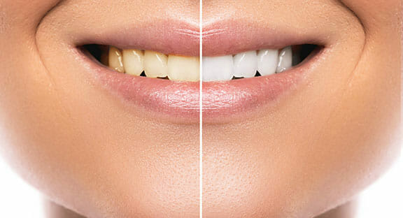 before and after temecula teeth whitening