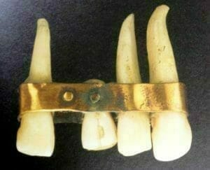 ancient dental implants
