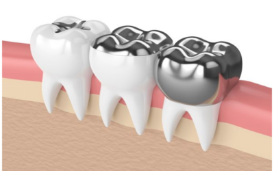 The toxic truth of Mercury Fillings