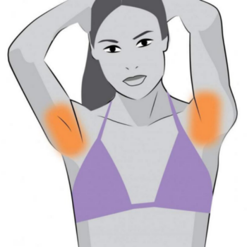 under arm laser hair removal