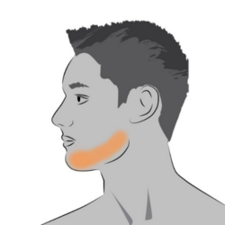 men's jawline laser hair removal