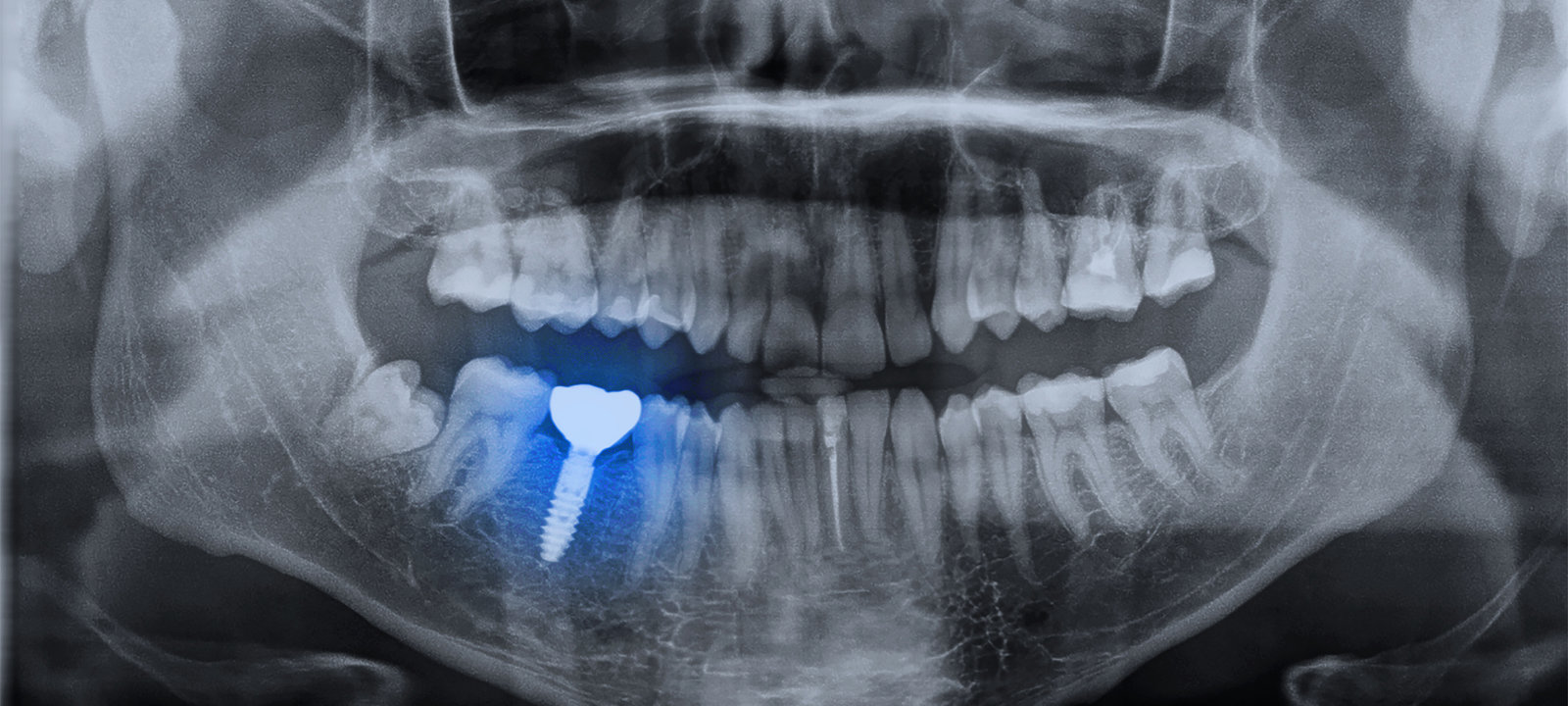 Panoramic-Dental-X-ray-Image-Mouth-Of-Adult-Man